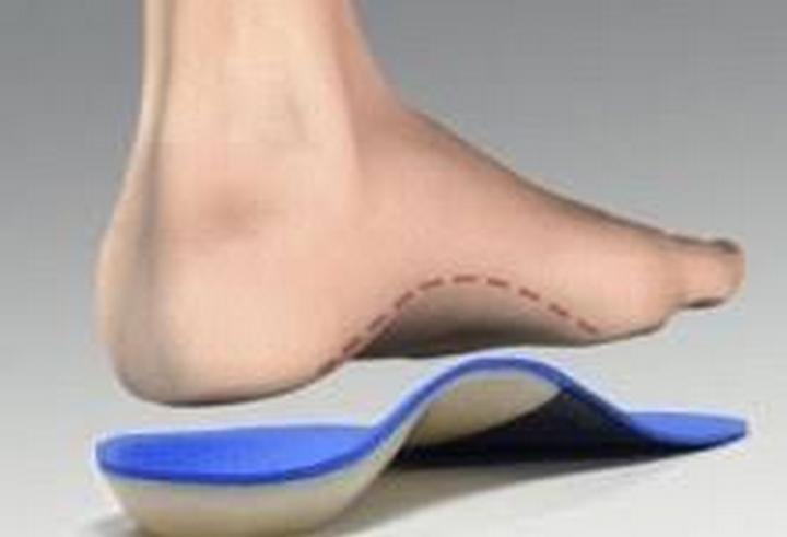 Bàn chân bẹt là gì